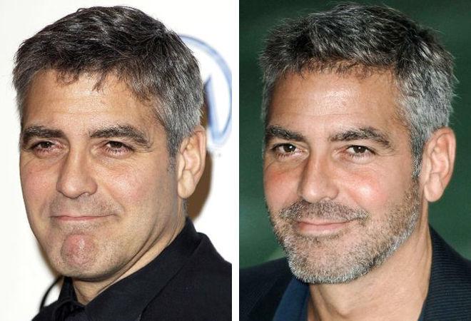 Джордж Клуни пластика фото